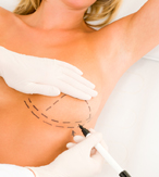 Breast Implants Procedure