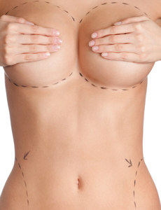 Fat Grafting Breast Augmentation