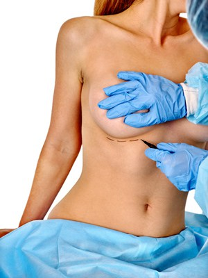 Dual Plane Breast Augmentation