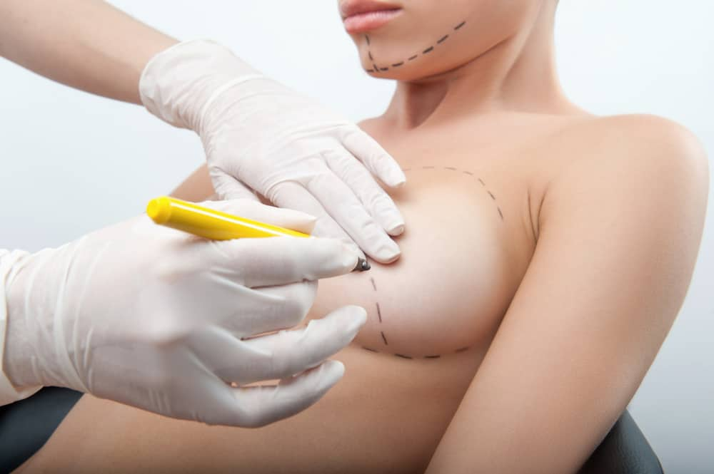 breast augmentation & exercise